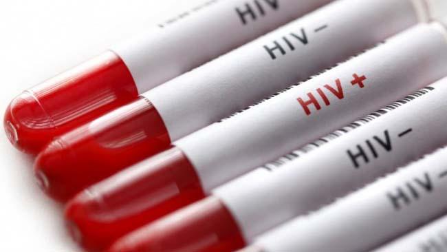 Komisi E DPRD Jatim Usulkan Perda Untuk Penderita HIV dan AIDS
